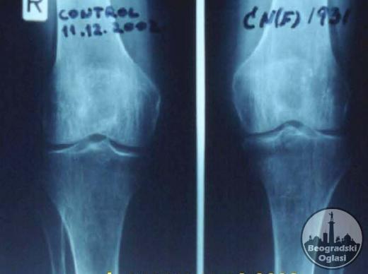 Behandlung von Knochen und Gelenken